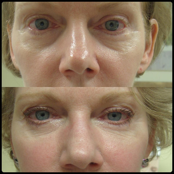 botox around eyes before and after