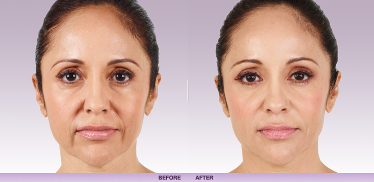 Juvederm In Washington Dc And Olney Cosmetic Skin