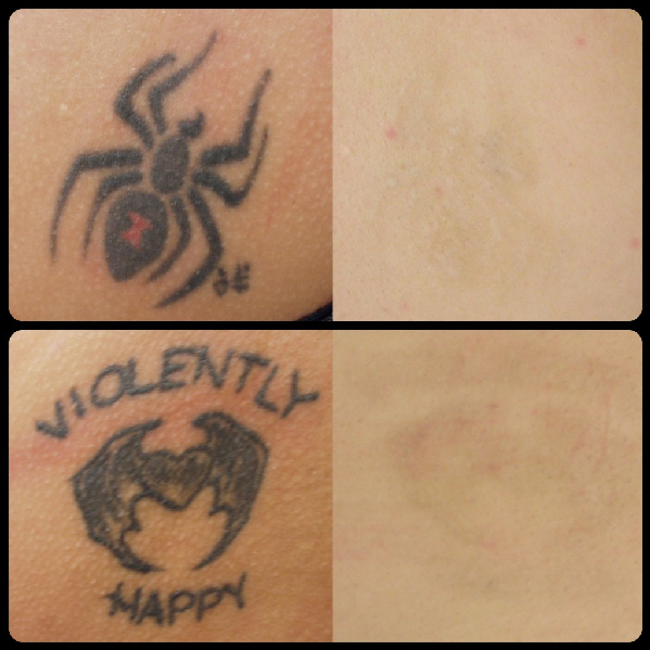 laser tattoo removal washington dc cosmetic skin