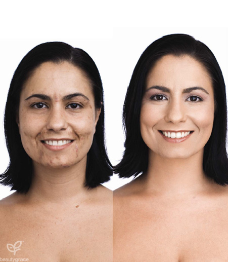 Jane Iredale - Before & After