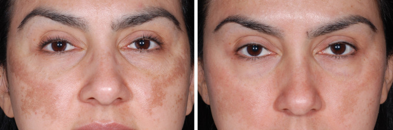 Dermapen in Washington DC and Olney, MD | Cosmetic Skin Institute ...